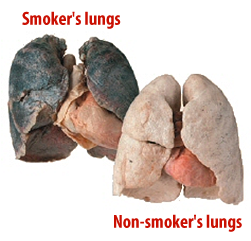 smokers-lungs-comparison.png