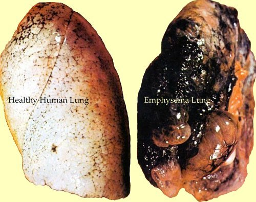 smokers-lungs-pictures-1.jpg